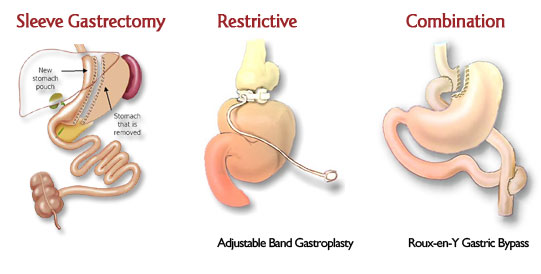 Bariatric Surgery Types