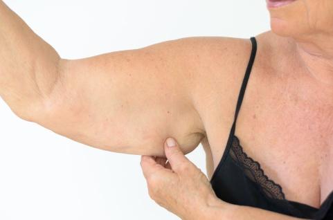 Ältere Frau zeigt ihren Arm mit Elastizitätsverlust